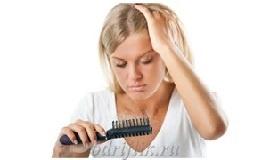 Почему стали выпадать волосы м