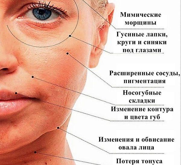 Почему появляются морщины на лице 1